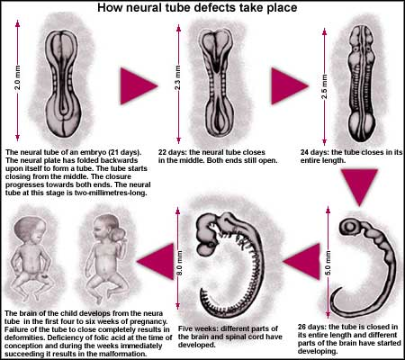 What are Neural Tube Defects? - India Environment Portal | News ...